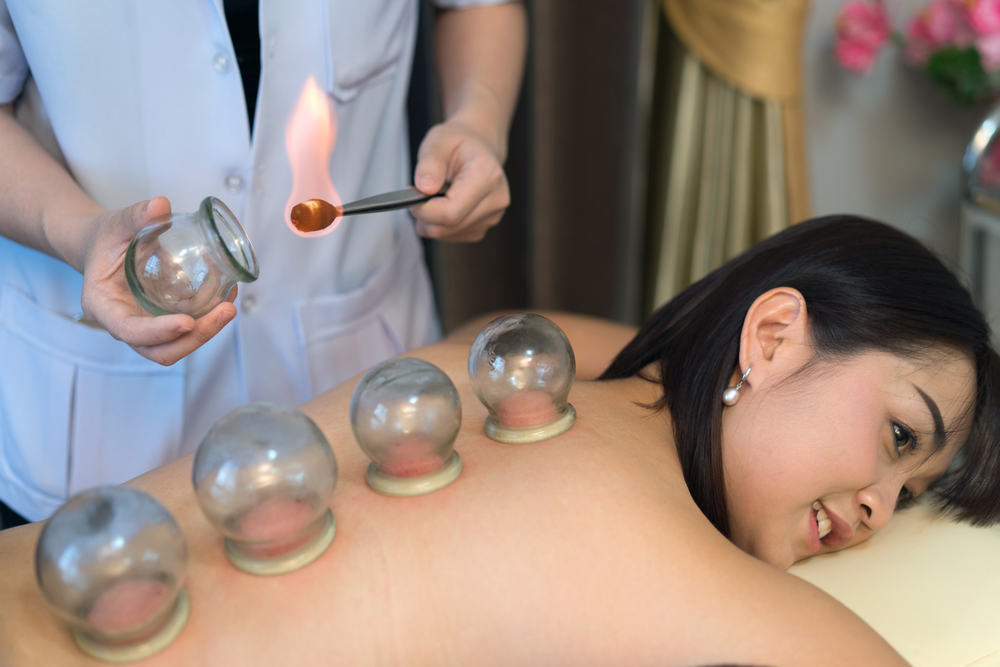 ventouses-massage-seches-medecine-chinoise