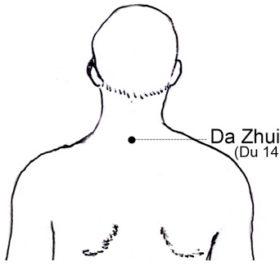 da-zhui-point-acupuncture