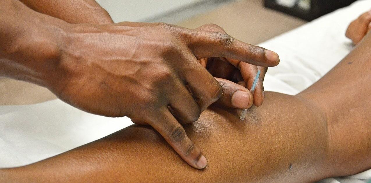 acupuncture-traitement-aiguilles